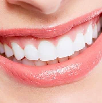 歯肉退縮治療