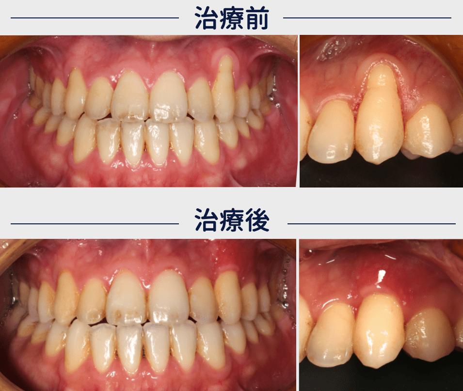 フェスティバルタワー筒井歯科の歯肉退縮の症例VISTAテクニック