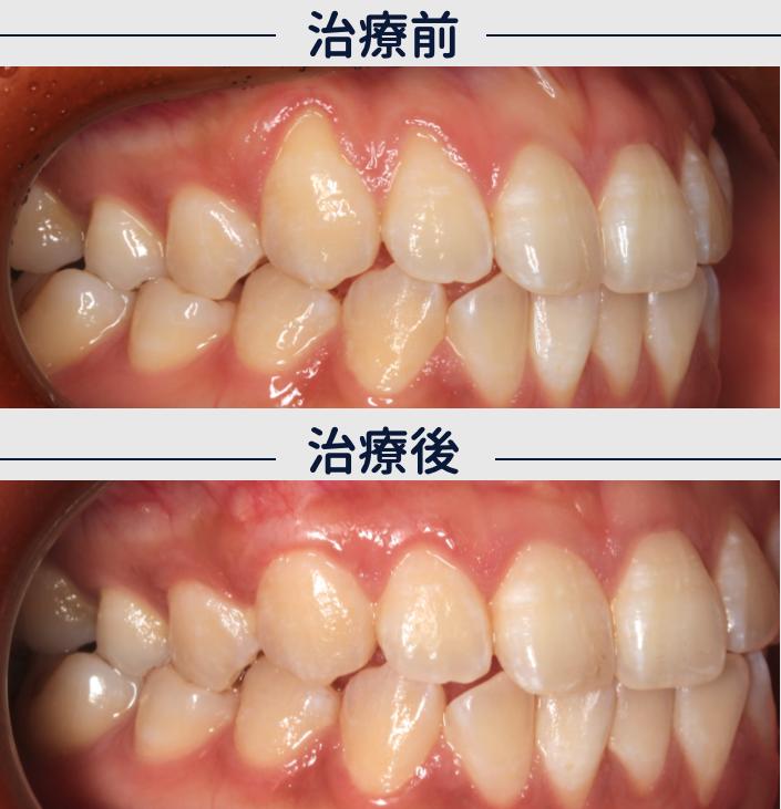 フェスティバルタワー筒井歯科の歯肉退縮の症例VISTAテクニック2